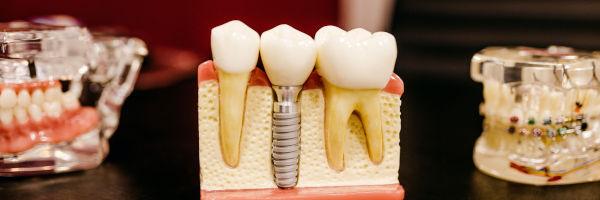 gros plan sur un dentier