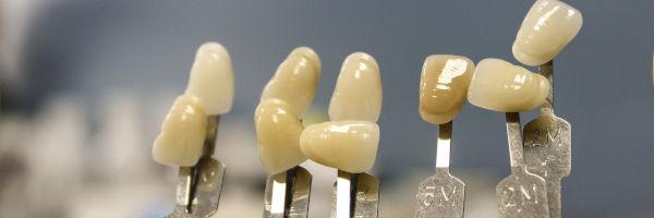 gros plan sur des prothèses dentaires