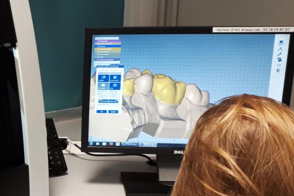 apprenti qui modélise des prothèses dentaires sur ordinateur